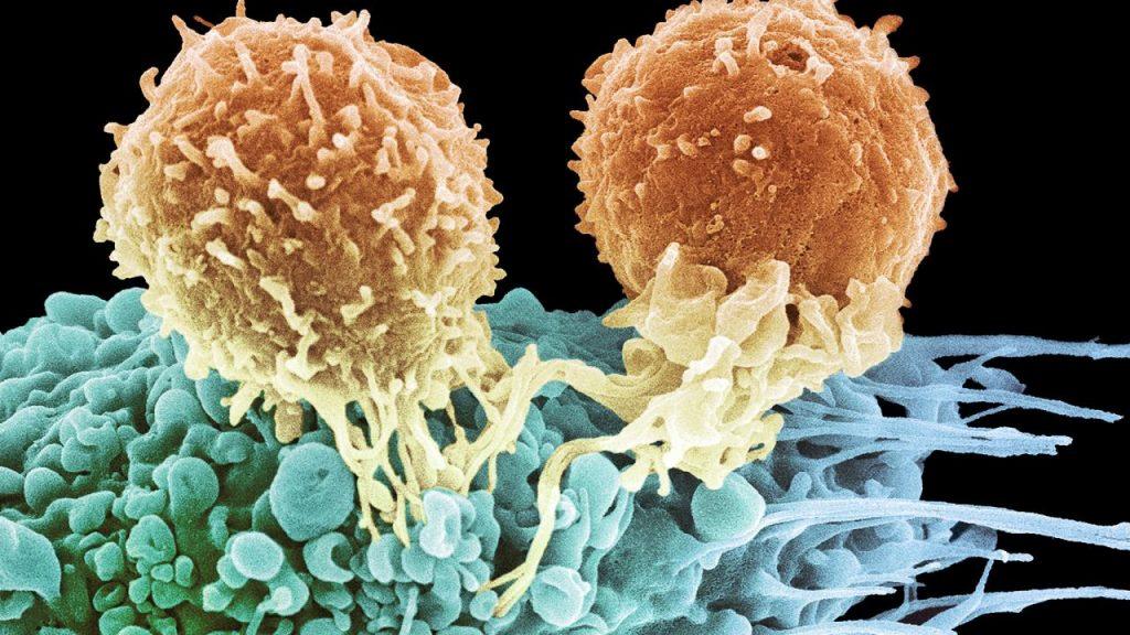 Hvorfor viker immunterapi på så få pasienter?