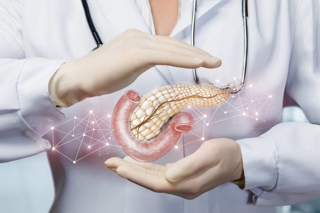OncoloMed og kreft i bukspyttkjertel