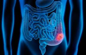 Urinprøve for å avdekke spredning av tykktarmskreft til lever