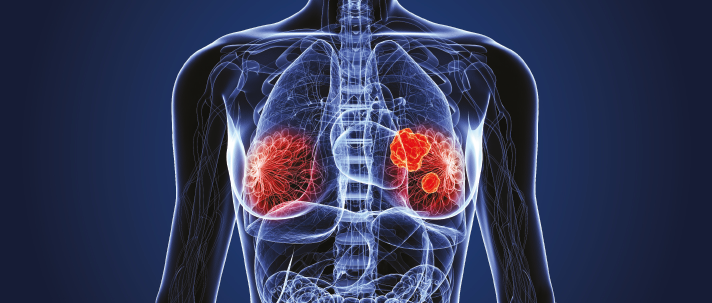 Første framskritt på 20 år for behandling av tidlig brystkreft!